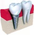 Denti3d1