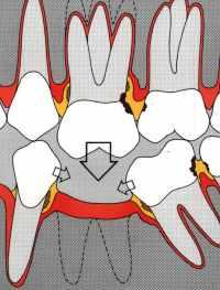 Limare i denti