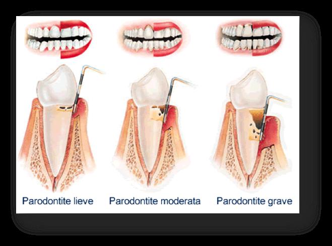 Stadi della paradontite